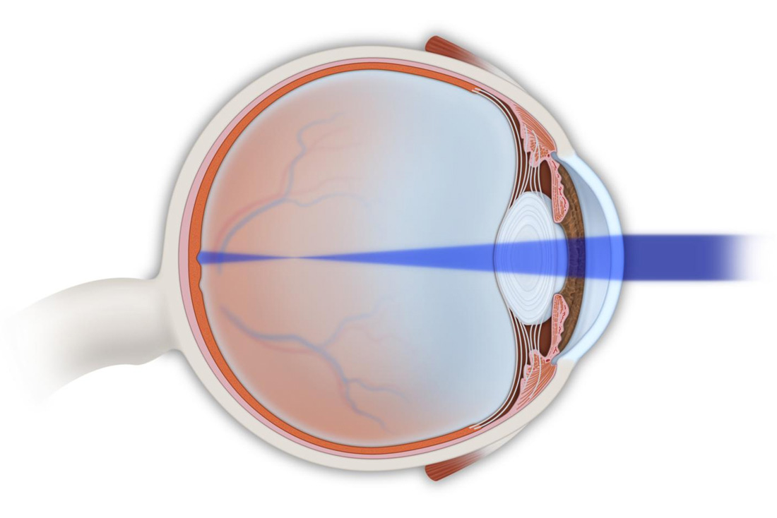 Auge Kurzsichtig